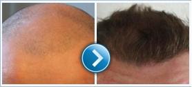 A Hair transplant clinic az utazást is megoldja